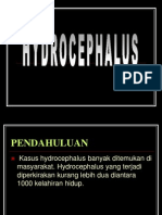 HIDROCEPHALUS ppt
