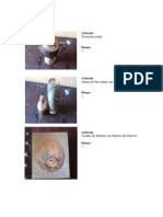 Articulo tumores intrarrauideos