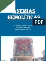 02 Anemias Hemolíticas