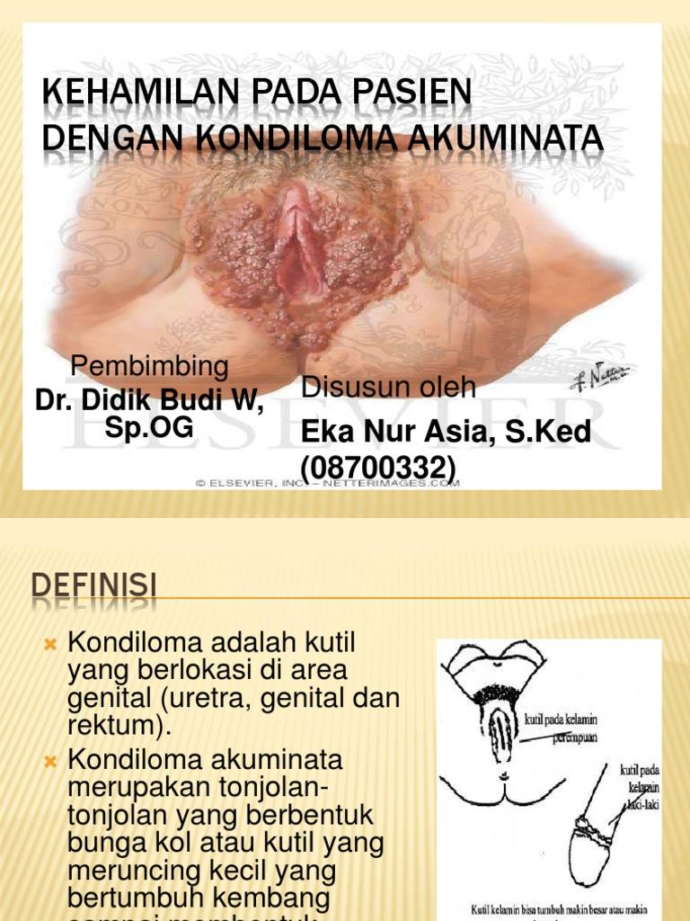uretra în condiloame