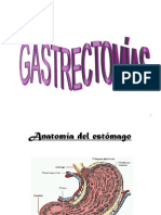 Gastrectomia Bilroth II