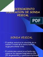 colocacionsondavesical-100309113800-phpapp02[1]