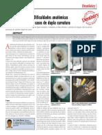 Dificuldades anatómicas – casos de dupla curvatura