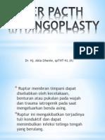 Paper Pacth Myringoplasty