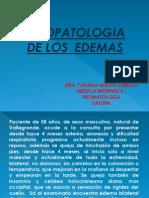 Fisiopatologia de Los Edemas