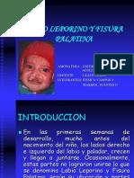 Labio Leporino y Fisura Palatina