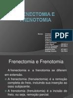Frenectomia+e+Frenotomia