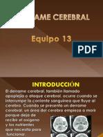 Derrame Cerebral Fisica (2)