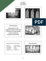 Periodontitis mantap