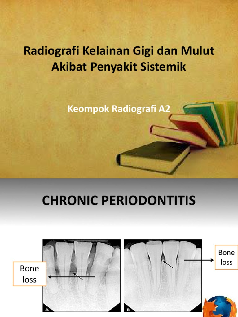 Radiografi Kelainan Gigi dan Mulut Akibat Penyakit Sistemik.pptx c5992b8be8