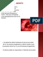 Aborto Aguilera