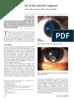 Ocular Cycticercosis of SA