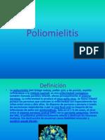 Poliomielitis Juan