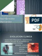 Evolución clínica EXPOSICION DE GINECOLOGIA