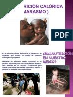 fuplasdesnutricincalricamarasmo-091120143429-phpapp02
