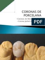 Coronas de Porcelana 2unid (1)