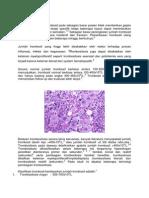TROMBOSITOSIS.docx
