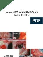 ALTERACIONES SISTÉMICAS DE LA ESCLERITIS
