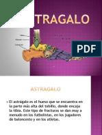 Fx Astragalo