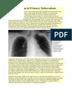 Imaging in Primary Tuberculosis