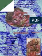 Teratomas y Rabdomiosarcomas