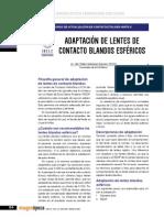 Adaptación Lente de contacto blando esferico
