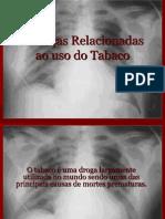 Doenças Relacionadas ao uso do Tabaco