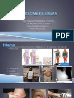 Síndrome de edema