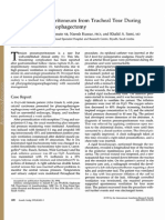 Trachea Rupture and Tension Pneumoperitonium