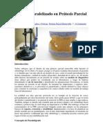 Diseño y paralelizado en Prótesis Parcial Removible.docx