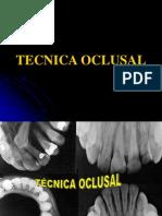 TÉCNICAS RADIOGRÁFICAS BITE WING