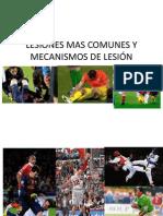 LESIONES MAS COMUNES  mecanismos de lesión