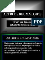 artritis-reumatoide-1227911406013157-8