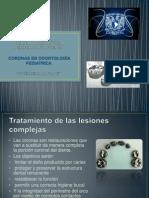 Tratamiento de las lesiones de caries complejas coronas acero cromo.pptx
