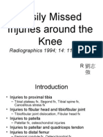 Easily Missed Injuries Around the Knee