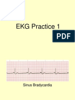 EKG Practice Powerpoint