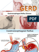Gastroesophageal Reflux Disease DONE