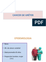 Cancer de Ureter