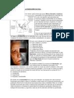 Fisioterapia de La Paralisis Facial