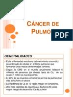 Cancer Pulmonar1