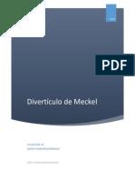 Divertículo de Meckel
