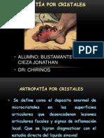 artropatiaporcristales
