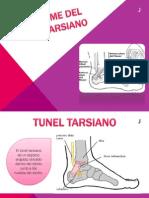 Sindrome Del Tunel Tarsiano