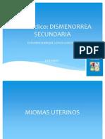 MIOMAS UTERINOS