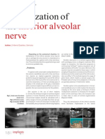 Lateralisation of Alv Nerve