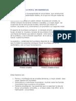 prtesiscompletaototal-100415070817-phpapp01