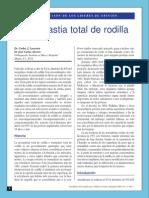 Articulo Artroplastia Total de Rodilla