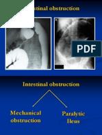 intestinal obstruction bs