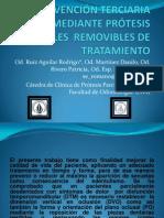 PREVENCIÓN TERCIARIA MEDIANTE PRÒTESIS PARCIALES  REMOVIBLES DE TRATAMIENTO