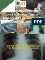(10) Clasificacion de Las Radiografias OIT